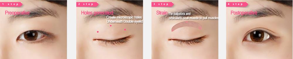 韩式三点定位双眼皮手术