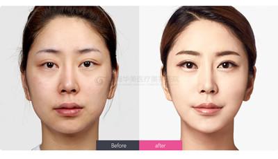 常见的双眼皮修复方法