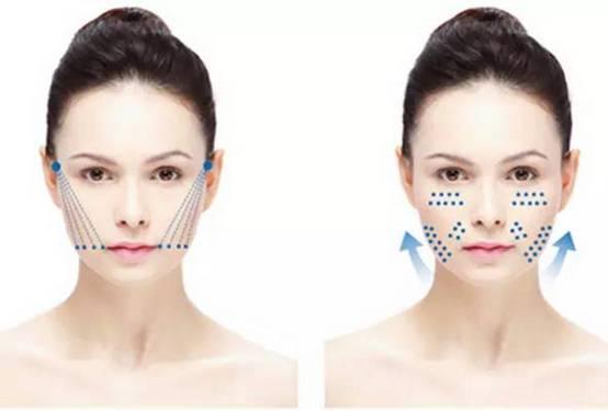 """不开刀的午休年轻美容术 1、采用通过CFDA最高安全等级认证的可吸收缝线""""活性PPDO蛋白线""""; 2、通过专业的手法埋入SMAS筋膜层或脂肪深层; 3、具有倒钩锯齿的PPDO蛋白线进入后,产生一定的提拉上升组织作用; 4、PPDO活性线作为体内细胞生长树状支架,还会刺激肌肤沿着支架再生胶原蛋白及弹性纤维; 5、在PPDO""""活性线""""被人体吸收之前,胶原蛋白会不断生成; 6、治疗后的面部恢复年轻时候的饱满充盈弹性紧致。   PPDO线雕提拉不止提下垂,还能嫩肤"""